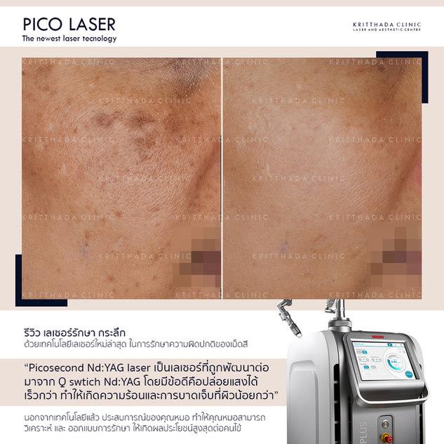 รีวิว รักษากระ ด้วย Picosecond Laser