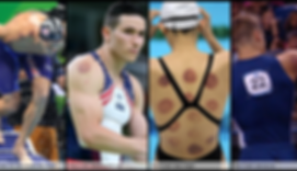 olympic-cupping-1080x623.png