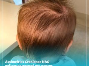Assimetrias Cranianas NÃO voltam ao normal aos poucos!