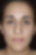 Assimetria - Clínica da Face