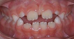 sucção lingual, protrusão incisiva, mordida aberta