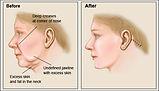 Ritidectomia - Clínica da Face
