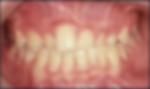 retrusão maxilar