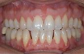 retrusão maxilo-mandibular