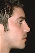 Prognatismo - Clínica da Face