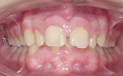 retrusão mandibular