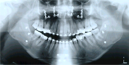mordida aberta - pós cirurgia
