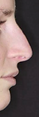 Rinoplastia - Clínica da Face