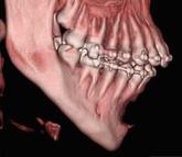 prótese mento