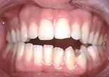 colapso maxilar