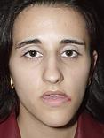 Assimetria facial