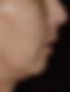 Mentoplastia - Clínica da Face