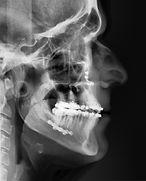 prognatismo - cirurgia