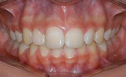 Classe II dentária