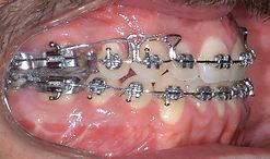 prognatismo - cirurgia ortognática
