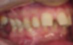 recuo mandibular