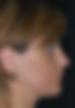 Retrognatismo - Clínica da Face