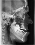 prognatismo - preparação ortodôntica pré-cirúrgica
