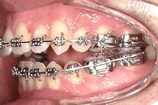 mordida aberta - ortodontia pré-cirurgica