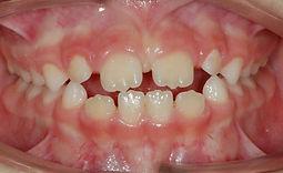 sucção lingual - protrusão incisiva - mordida aberta