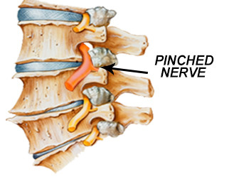 Sagittal view of a portion of the spinal column with the horns of the vertebrae pinching a nerve coming out of the spinal cord.