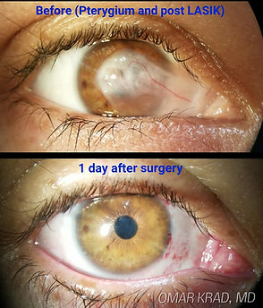 Pterygium on lasik patient20170714_21053