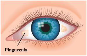 Piguecula1.jpg