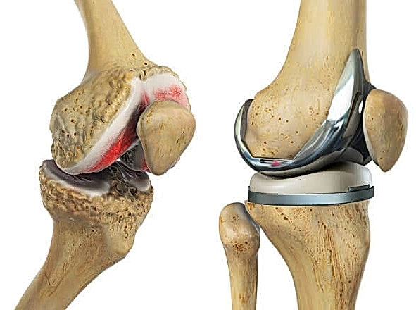 knee-replacement physiterapy guide by b2lcare