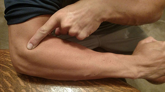 pain point of tennis-elbow by b2lcare physotherapist