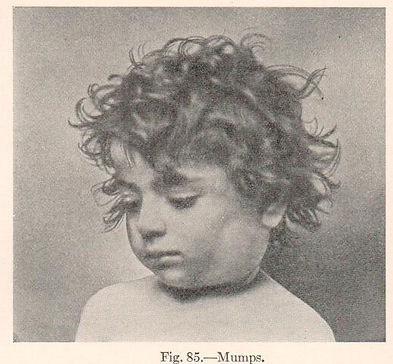 Child with mumps.jpg