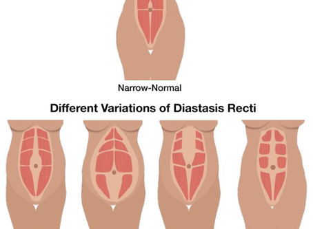 What is all the fuss about Diastasis Recti?