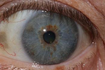 Augendiagnose  Homöopathische Praxis