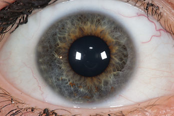 Augendiagnose Heilpraktiker Tobias PoppNaturheilpraxis Tobias Popp|Homöopathie-Kinder|Augendiagnose|Biodynamische Körperpsychotherapie|Kinder|Rückenbehandlung|Wunstorf|Am Alten Markt 18|