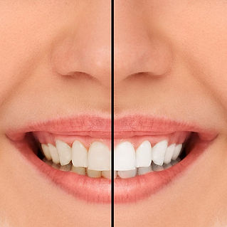 A before and after whitening of teeth