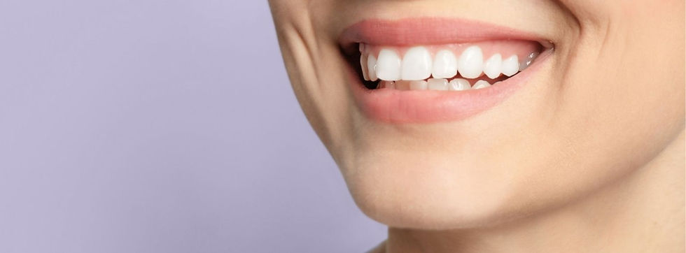 Better Smiles - A woman smiling with a beautiful teeth.