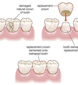 dental-crown-procedure-illustration_edit