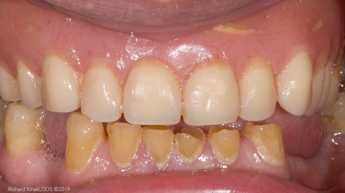 Implant-Supported-Dentures-Before.JPG