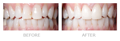 Dentist San Mateo Patient April