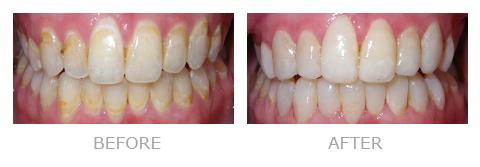 Dentist San Mateo Patient Courtney