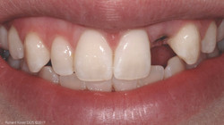 Implant-01-Before