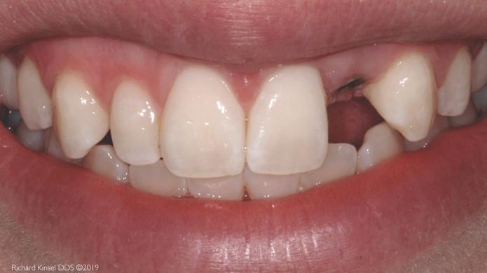 Implant-01-Before.JPG