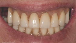 Implant-Supported-Dentures-01-After