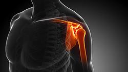 Shoulder-Pain-Center