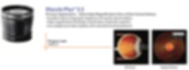 lente di volk diagnostica oftalmologia