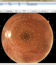 Frey_AP300_Fundus-overlay-768x768.png