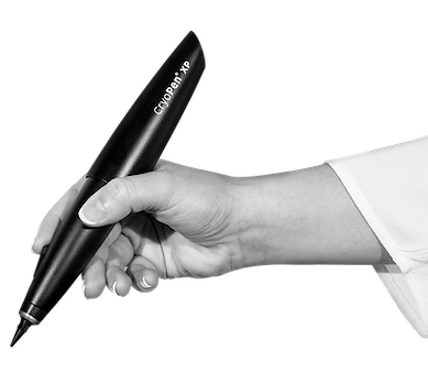 CryoPen_XP_hand-03_black copia.png