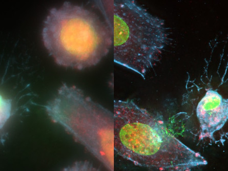 Mechanobiology and Immunology: From T cells to rare diseases.