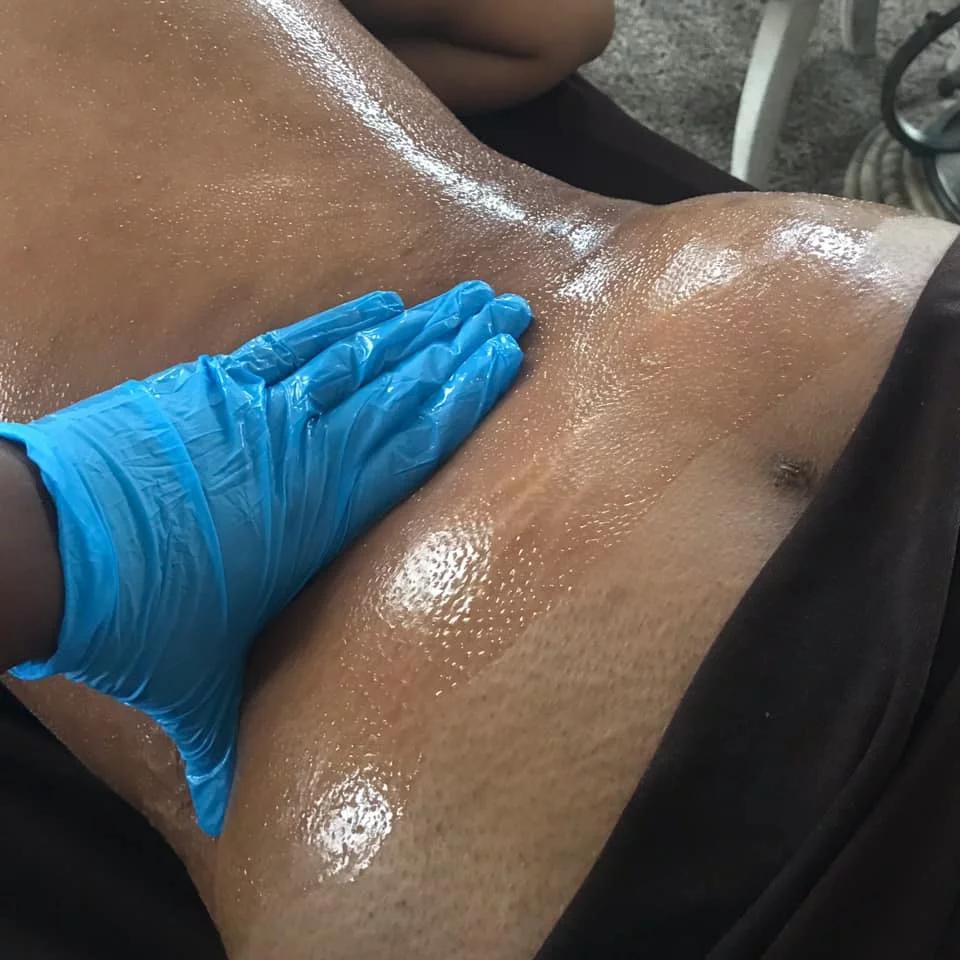 Post Op Lymphatic Massage