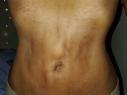 Lipo suction swelling