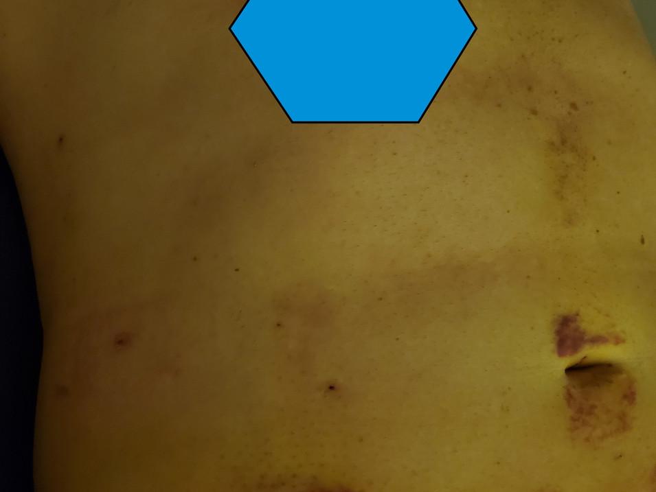 Lipo suction, HD360